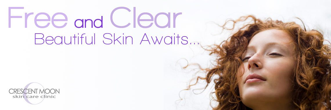 Crescent Moon Skin Care Clinic can help you achieve acne-free skin